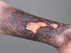 3rd degree burn simulation, gelatin and liquid latex