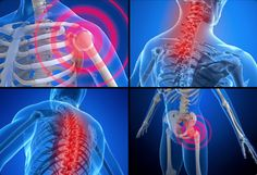 What is fibromyalgia? Fibromyalgia is a chronic condition that causes pain and stiffness of the tendons, muscles, and joints. Learn about fibromyalgia symptoms, treatment and tender points. Chronic Illness, Chronic Pain, What Is Fibromyalgia, Fibromyalgia Treatment, Fibromyalgia Exercise, Treating Fibromyalgia, Chronic Fatigue Syndrome Diet, Fibromyalgia Syndrome, Invisible Illness