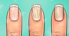 Pewnie nie zdajesz sobie z tego sprawy ale kształt i wygląd twoich paznokci może oznaczać o stanie twojego zdrowia. Sprawdź jakie: 1. Paznokcie zakrzywione w dół Ten kształt paznokci jest dość charakterystyczny i nietrudno go rozpoznać. Często tego Health And Beauty, Detox, Beauty Hacks, Water Bottle, Health Fitness, Ale, Projects, Wax, Ongles