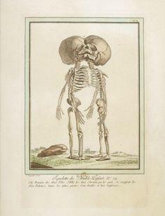Les Écarts de la nature ou recueil des principales monstruosités (The Deviations of Nature or a Collection of the Main Monstrosities) by Nicolas-François and Geneviève Regnault, 1775