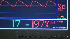 Near-death experiences study WATCH VIDEO https://www.worldnewsmd.com/Video/Neurology/Near-Death-Experiences-Study- #NearDeatHExperience #MedicalNews #MedicalResearch