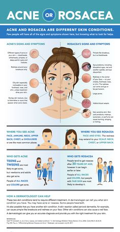 Redness and breakouts on your face could mean that you have acne, but not always. A skin condition called rosacea can cause acne-like breakouts and redness. Learn how to distinguish between acne and rosacea on your skin. Facial Treatment, Acne Rosacea, Pimples, Rosacea Remedies, Oily Skin, Sensitive Skin, Skin Tips, Skin Care, Tips
