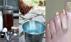 "Nail fungus is not just gross at sight it can lead to serious consequences and m… – "".Designed To Deal With Even The Nastiest Toe & Nail Fungus"" Foot Fungus Treatment, 2 Ingredient Recipes, Toenail Fungus Remedies, Fungal Infection, Health And Beauty Tips, Natural Medicine, Toe Nails, Fungi, You Nailed It"