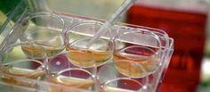 Científicos crearon minirriñones con células madre http://noticiasadiario.com/cientificos-crearon-minirrinones-con-celulas-madre/
