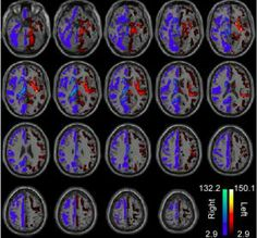 Researchers debunk myth of 'right-brained' and 'left-brained' personality traits.