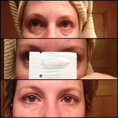 Jeunesse Instantly Ageless Review - Wrinkles and under eye bags gone in 2 minutes. This is my favorite beauty product!
