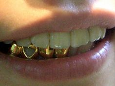 someone tell me again why I can't have a grill? I'm fucking kidding, just wanted to see if anyone reads this shit lol