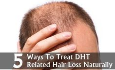 The hormone dihydrotestosterone (DHT) is responsible for permanent hair loss, also known as male pattern baldness. DHT is a derivative of the male hormone testosterone. When it accumulates in the hair follicles, it shrinks the hair follicles, leading to p