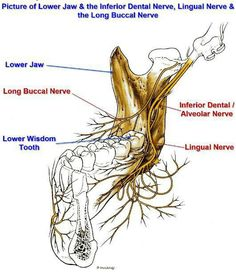 Anatomy - Picture of Lower Jaw & the Inferior Dental Nerve, Lingual Nerve & the Long Buccal Nerve Dental World, Dental Life, Dental Art, Dental Health, Health Care, Dental Assistant Study, Dental Hygiene School, Dental Anatomy, Medical Anatomy