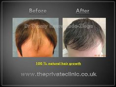 Hair Transplant - Results. Dr Thomy Kouremada-Zioga. Part 1