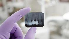 Implantes dentales, ¿son todos iguales?