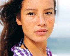 Best Methods for  Acne Treatment in Teenagers