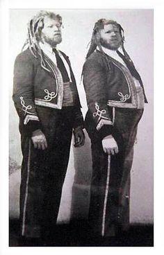 Eko & Iko Muse- Black albinos born around the 1890s