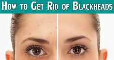 Life Tips And More !: How to Get Rid of Blackheads