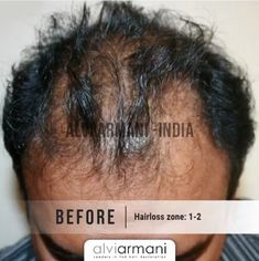 Alvi Armani Hair Restoration specializes in Advanced FUE Hair Transplants, Offices in Los Angeles, CA. Hair Transplant In India, Best Hair Transplant, Armani Hair, Natural Hair Care, Natural Hair Styles, Hair Restoration, Hairline, Hair Loss, Cool Hairstyles