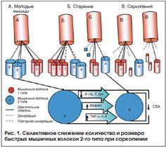 Рис. 1. Селективное снижение количества и размера быстрых мышечных волокон 2-го типа при саркопении
