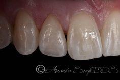 Conservative Cosmetic Dentistry via a Single Porcelain Veneer