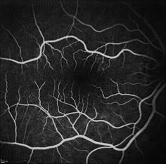 Retinal Intravenous Fluorescein Angiography of my right eye