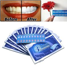 14Pairs Advanced 3D White Teeth Whitening Strips Gel Teeth Bleaching White Whitening Professional Care Oral Hygiene http://reviewscircle.com/health-fitness/dental-health/natural-teeth-whitening #oralcarenatural #naturalteethwhitening #whiterteeth #teethwhitening