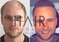 Before and After Contact with hair transplantation coordinator on WhatsApp for more information; +905388817099 www.hairtransplantationatturkey.com #hairtransplant #hairtransplantation #fue #before #after #turkey #istanbul