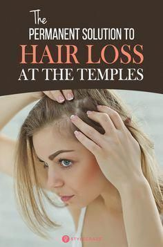 8 Simple Ways To Treat Hair Loss At The Temples: Temple hair loss in females is common and dealing with it can be quite hard, but understanding hair loss and its causes can tremendously help find a solution. Keep reading to find out what causes hair loss at the temples and how you can regrow temple hair naturally. #Hair #Haircare #Remedies #OilForHairLoss