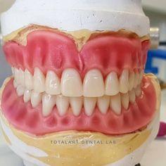 #dentalphotography #dentallab #zahntechnik #dentalart #tecnicodental #dentaltechnician #aestheticdentistry #stomatology #protesistotal… Protésico Dental, Dental Hygiene, Dental Lab Technician, Dental Videos, Dental World, Dental Photography, Dental Office Decor, Dental Laboratory, Dentistry