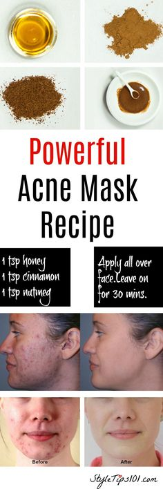 Homemade Natural Acne Mask