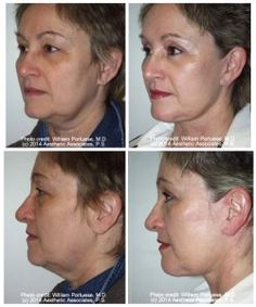 The Portland Center for Facial Plastic Surgery and top facelift surgeon Dr Portuese offers facelift surgery and some of the best before and after photos. Dental Images, Dr Williams, Restorative Dentistry, Dental Assistant, Rhinoplasty, Cosmetic Dentistry, Plastic Surgery, Portland, Facelift Surgery