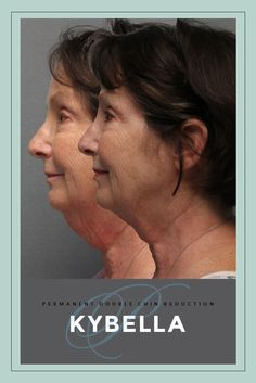 Check out the fat reduction and tightening this patient received after her first treatment of Kybella.  #kybella #doublechin