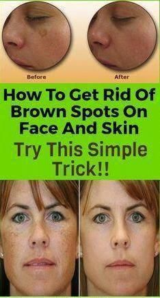 How to get rid of brown spots on face and skin. Your overall skin care regimen might be in need of some updating. There are lots of great natural things that you can do for your skin, in… Sun Spots On Skin, Black Spots On Face, Brown Spots On Hands, Age Spots On Face, Spots On Legs, Dark Spots, Sunspots On Face, Face Moles, Spots On Forehead