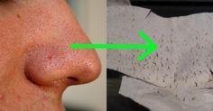 Mitesser endlich loswerden! Mit diesen 2 einfachen Zutaten, nie wieder unreine Haut.