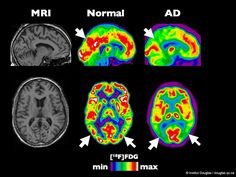 """Another study is adding evidence to the case for the treatment and prevention of Alzheimer's disease with the compounds in cannabis. Research published in the Journal of Alzheimer's Disease this September """"strongly suggest that THC [the main active ingr Alzheimers, Vascular Dementia, Dementia Care, Alzheimer's Prevention, British Journal, Endocannabinoid System, Healthy Brain, Brain Health, Special Needs Children"""