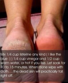 how-to-get-soft-feet