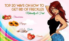 Top 20 Ways On How To Get Rid Of Freckles Naturally