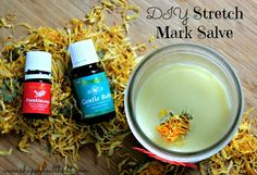 Stretch Mark Salve may have to try