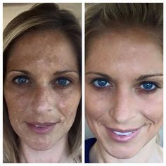 Rodan and Fields Reverse before and after !