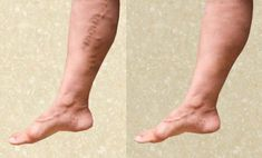 How to prevent varicose veins? Get rid of varicose veins. Cures for varicose veins naturally. Treat varicose veins at home fast. Ways to heal varicose veins. Varicose Vein Remedy, Varicose Veins Treatment, Toenail Fungus Treatment, Cellulite Remedies, Home Treatment, Nail Treatment, Natural Home Remedies, Herbal Remedies, Beauty Tips
