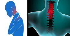 Om du lider av stel nacke, lindrar det här knepet din smärta på BARA 90 sekunder!