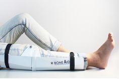 Origami Orthopedics! | Yanko Design
