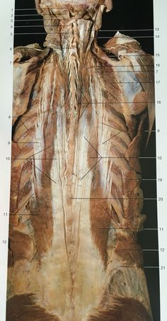 Muscles of back in deep layer (erector spinae muscles): 11:iliocostalis lumbrum, 9:iliocostalis thoracis, 7:iliocostalis cervices, 10:longissimus thoracis, 16:longissimus cervices, 14:longissimus capitis. Muscle Anatomy, Body Anatomy, Gross Anatomy, Musculoskeletal System, Muscular System, Medical Anatomy, Muscle Body, Back Muscles, Yin Yoga