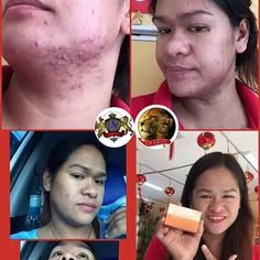 Get rid of your pimples and dark spots by using NLighten Kojic Papaya with Glutathione soap for only Php 200.  Natures Lightening and Nourishing Beauty Bar Soap (Triple Lightening with Glutathione Kojic Acid and Papaya Extract)  135g as packed  NLIGHTEN KOJIC PAPAYA W/ GLUTATHIONE is delicately formulated to make your beauty regimen effortless by combining the powerful essences of Glutathione Kojic Acid and Papaya Extract. This triple strength lightening complex is known to help even out…
