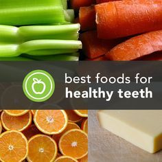 Keep chompers healthy and cavity free with these foods that promote strong teeth. Questions?