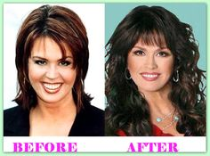 Marie Osmond Plastic Surgery Before And After  #MarieOsmondPlasticSurgery #MarieOsmond #celebritiesplasticsurgery