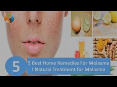5 Best Home Remedies For Melasma Natural Treatment for Melasma