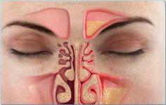 Come eliminare la congestione nasale in meno di un minuto - Vivere Più Sani