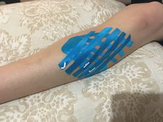 Kinesiotape for swelling  in the shin