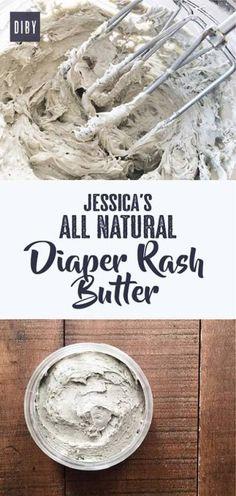 jessicas-all-natural-diaper-rash-pin