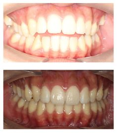 Before and after Invisalign. Actual patient of Impressions Orthodontics.