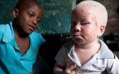 One in 20,000 people are born albino, but it is particularly common in   Tanzania, where it claims one in 1,400. Aislinn Laing reports on the   fight to keep albino children safe
