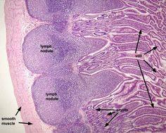 Digestive - Small intestine, ileum.